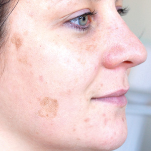 Pigment spots after a GREEN PEEL herbal peeling