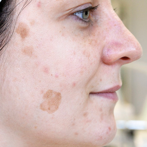 Pigment spots before a GREEN PEEL herbal peeling